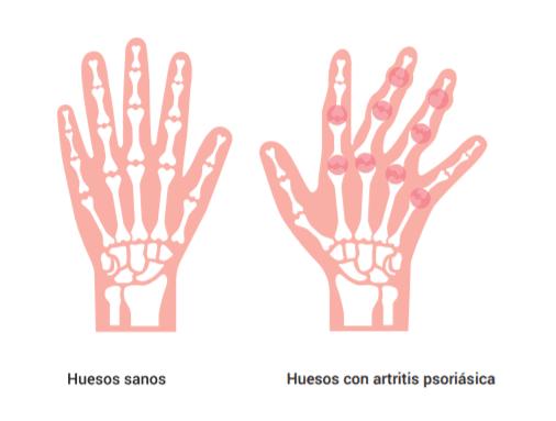 Huesos con artritis psoriásica