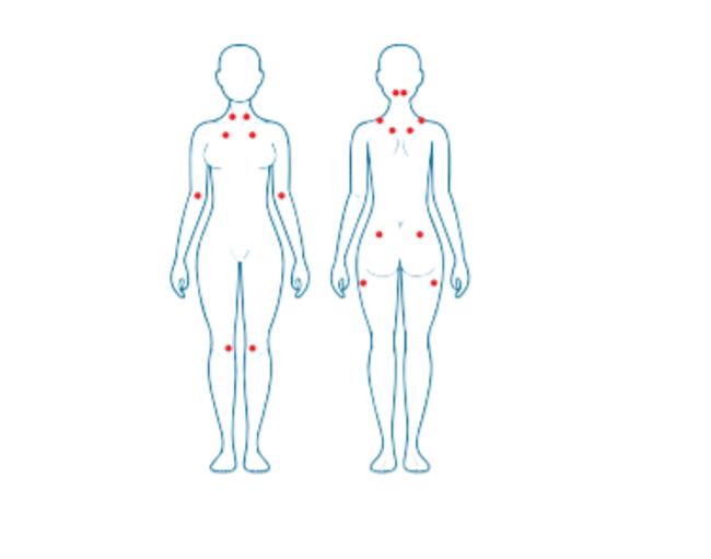 Puntos dolorosos para el diagnóstico de la fibromialgia según el American College of Rheumatology.