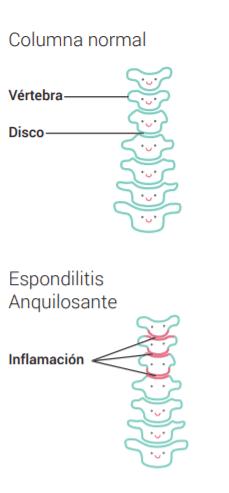 Columna con espondilitis