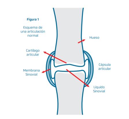 Lesión_cartilago_artrosis