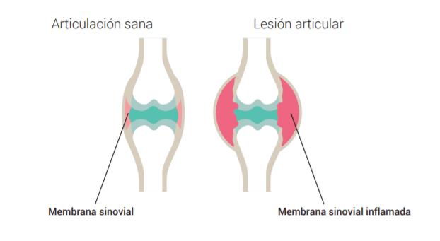 características de cuadro artritis reumatoide