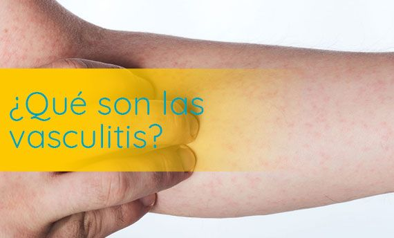 causas de la vasculitis leucocitoclástica diabetes